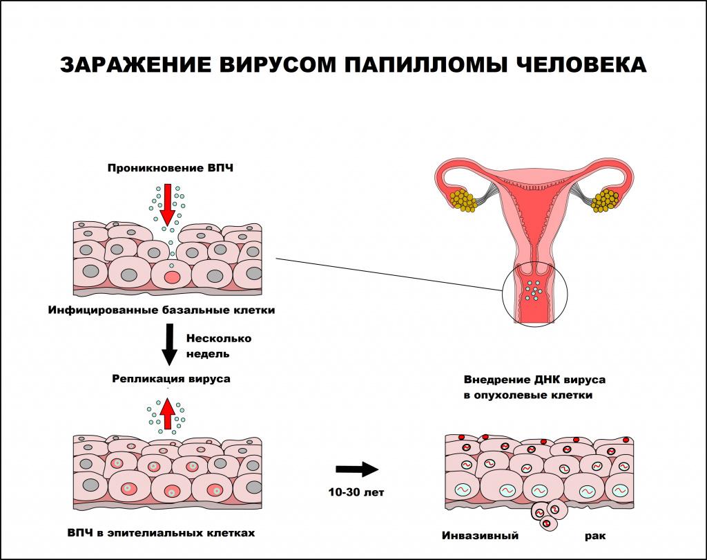https://cyberleninka.ru/article/n/papillomavirusnaya-infektsiya-klinika-diagnostika-lechenie.