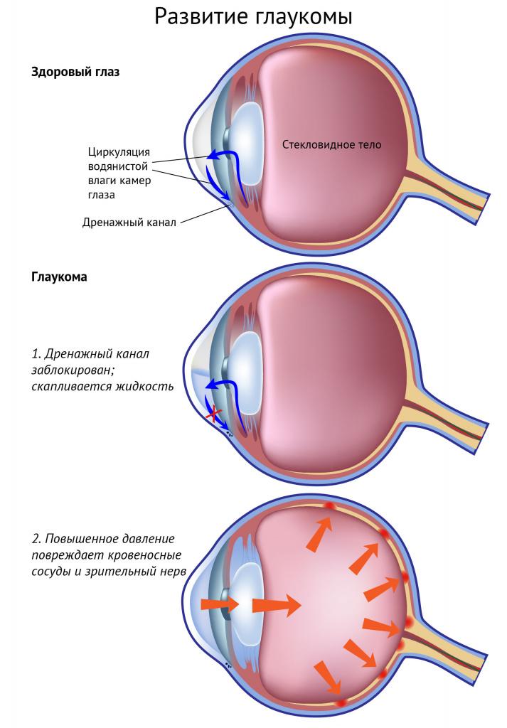 Glaucoma.jpg дамуы.