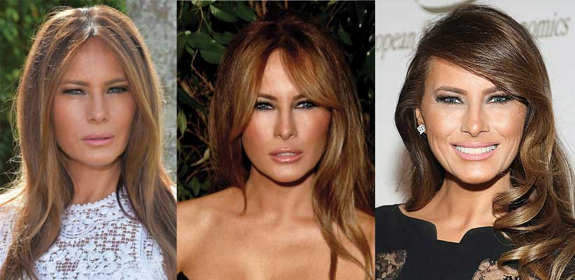 Melania Trump Plastic Surgery Before and After Pictures 2016