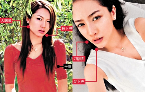Raymond Lam Plastic Surgery