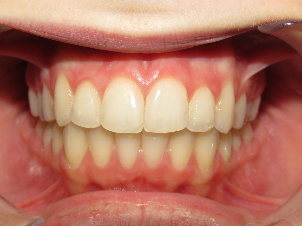 Before Amp After Kersten Orthodontics