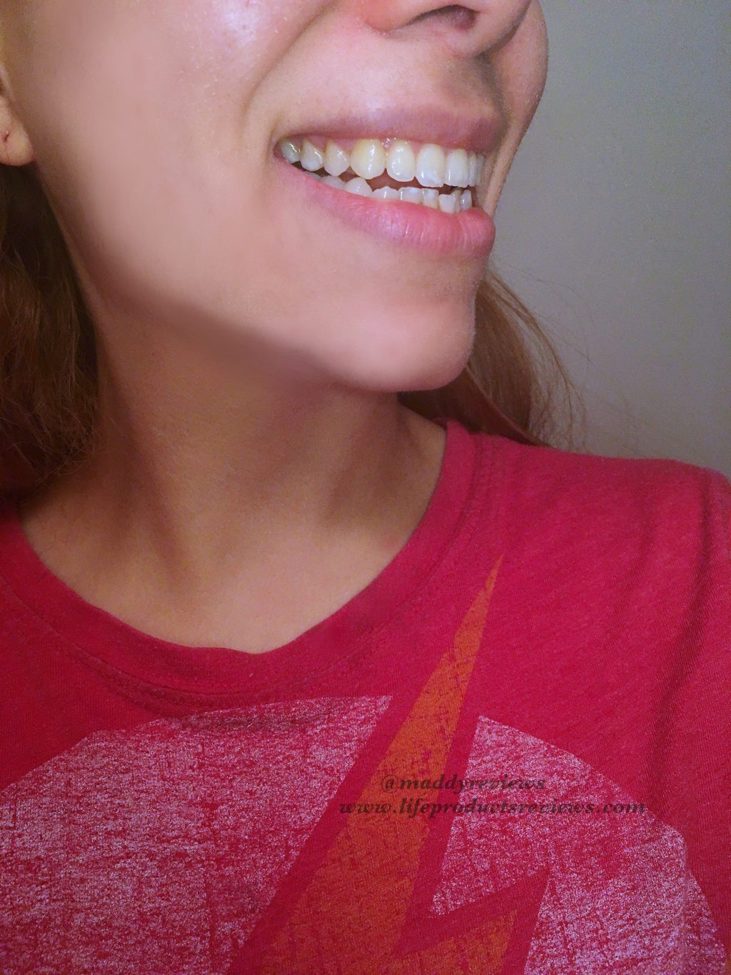 Before-results-right-side-teeth-yellow-stain-using-whitening-gel-kit