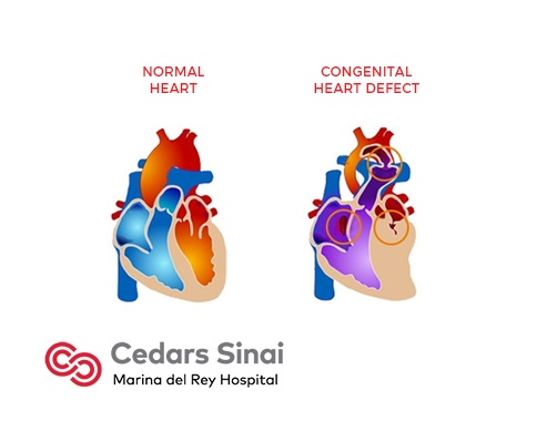 Congenital Heart Defects | Cardiology | Marina Del Rey ...
