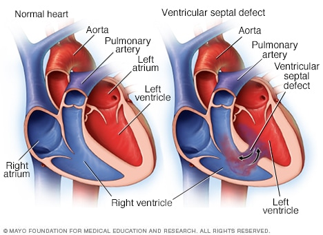 Ventricular septal defect (VSD) - Symptoms and causes ...