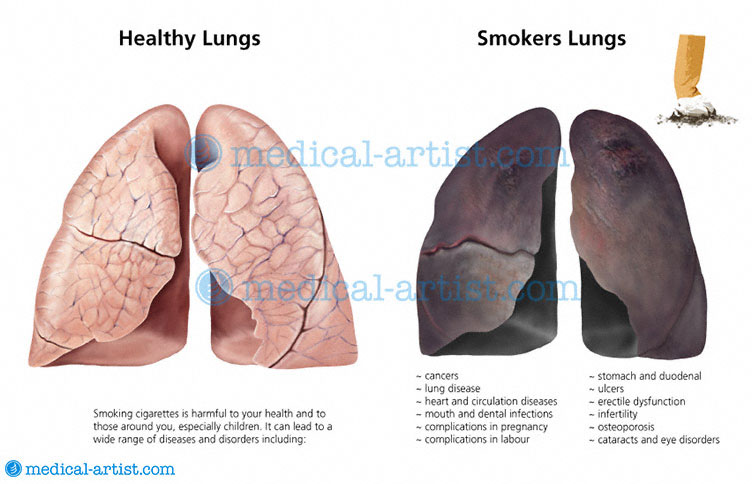 asthmatic lungs vs healthy lung
