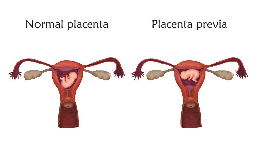 Baby Birth Control Mirena