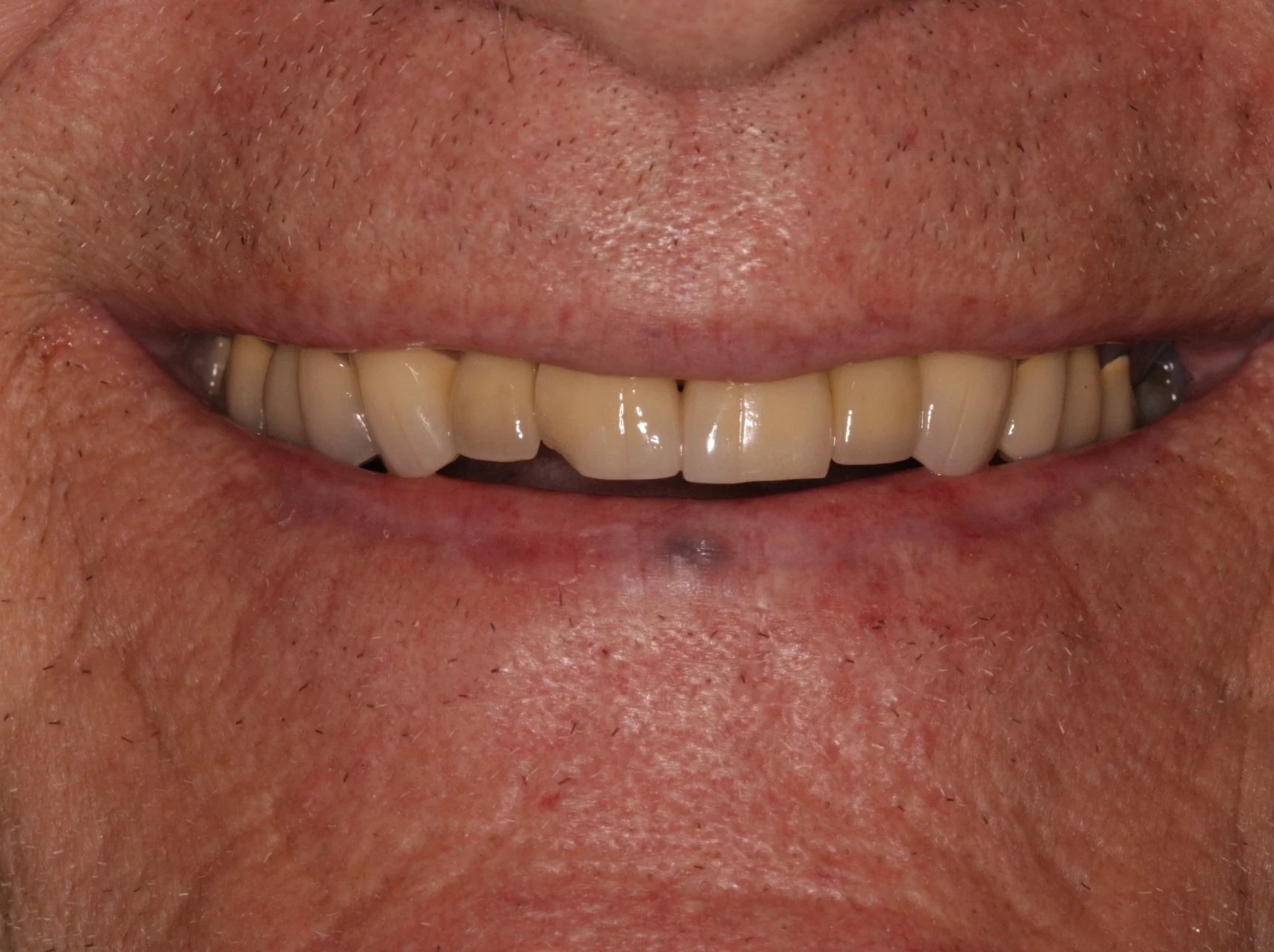 Before Amp After Oral Surgery Photos Montrose Co Oral Amp Facial Surgery