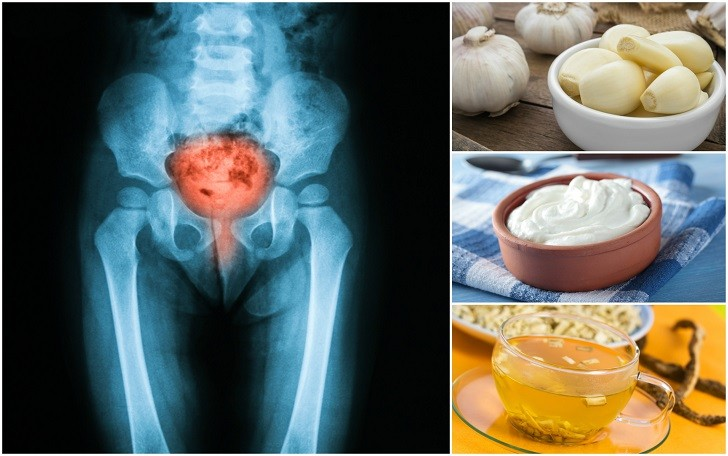 Urinary Pain Without Infection