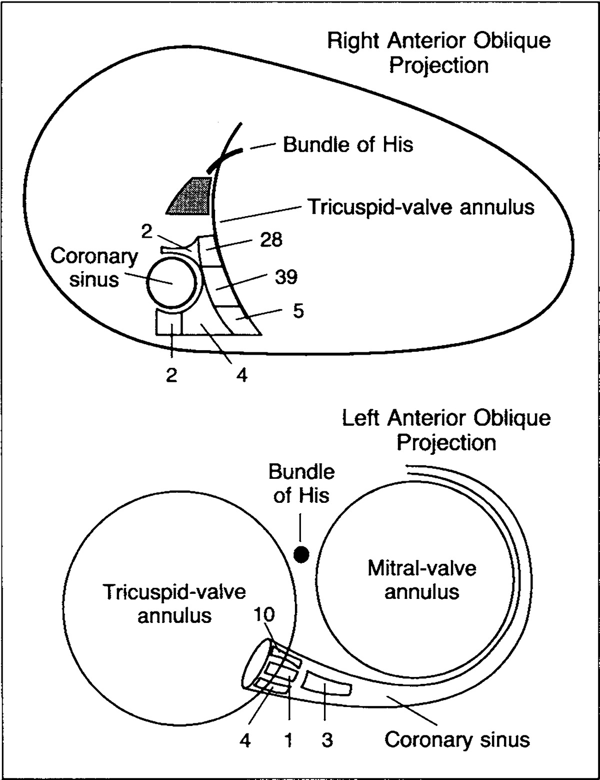 Schematic representation of the septum as viewed fluoroscopically in the right and left anterior oblique projections showing the 98 sites of successful