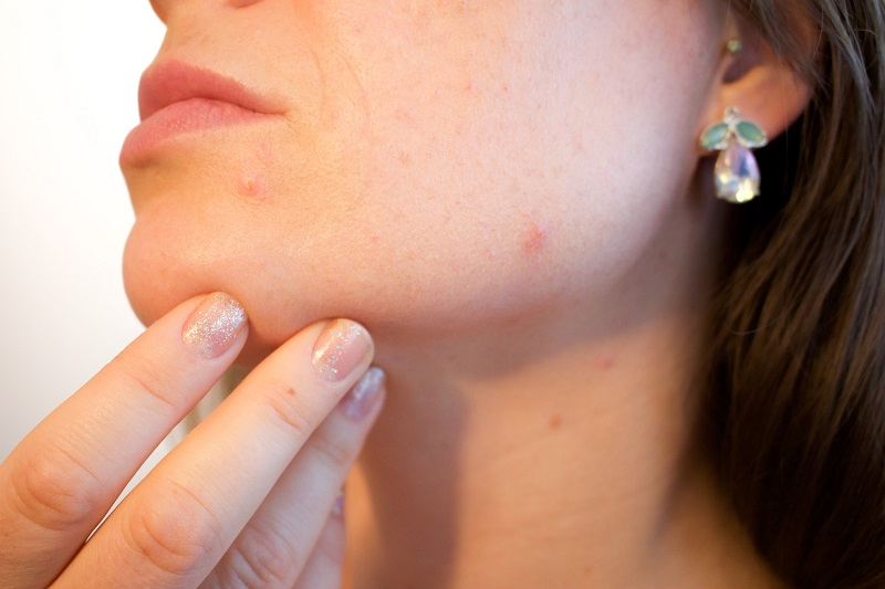 Herbalife Skin Products for Acne Woman Looking at Her Chin with Her Hand Holding Her Face Up