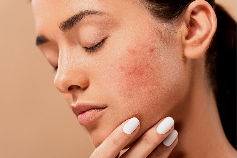 Herbalife Skin Products for Acne Woman with Acne Looking Down