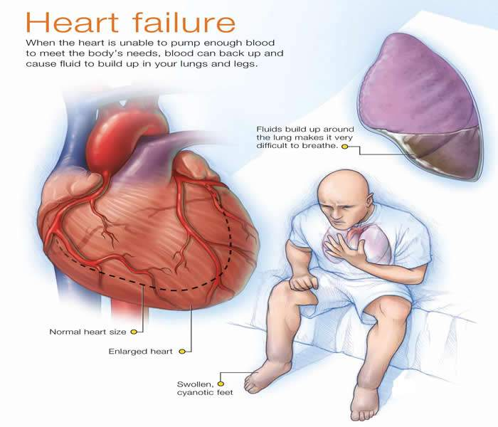 Acute decompensated heart failure ADHF is a sudden worsening of the signs and symptoms of heart failure which typically includes difficulty breathing leg or feet