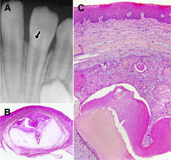 Rare peripheral odontogenic tumors: report of 5 cases and ...