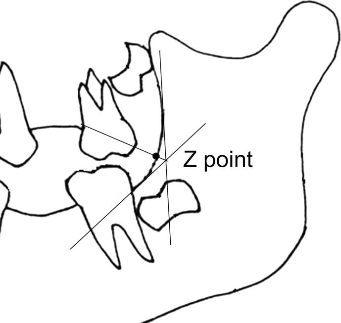 Maxillary First Molar Drawing
