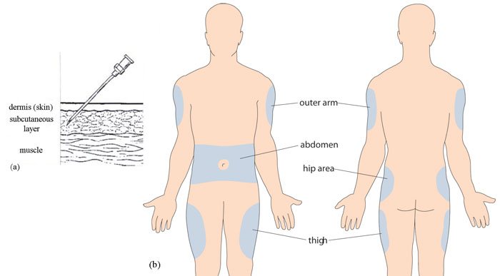 Sq Insulin Injection Sites