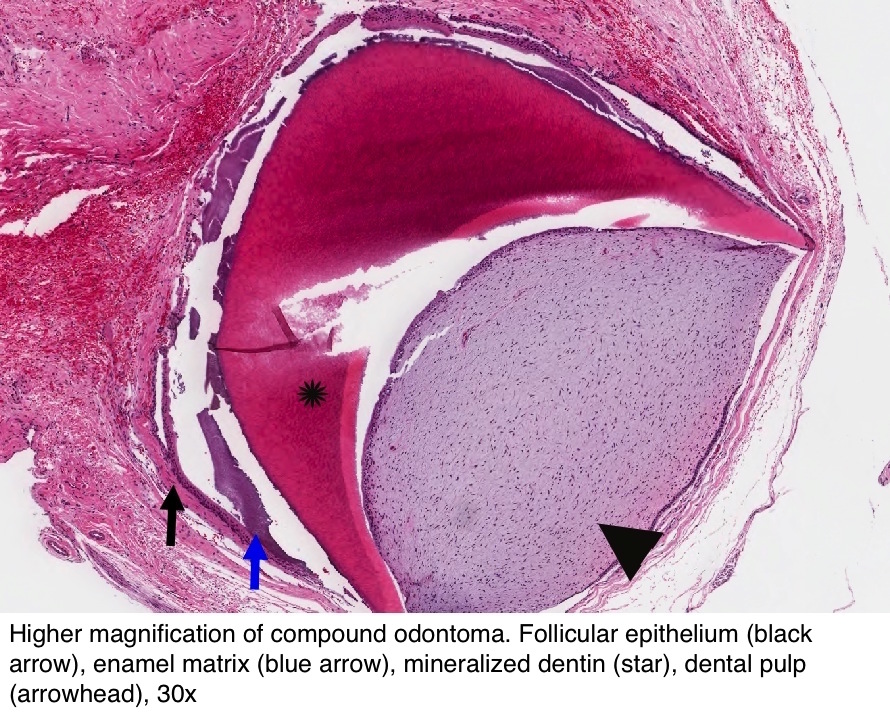 Pathology Outlines - Odontoma