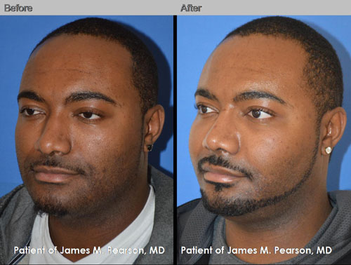American Rhinoplasty Wide Nose African