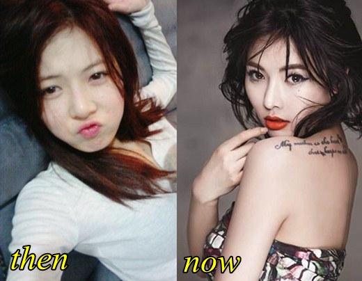 Lee Min Ho Plastic Surgery Nose