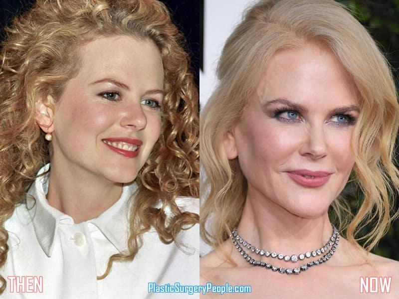 Dolly Parton Face Surgery