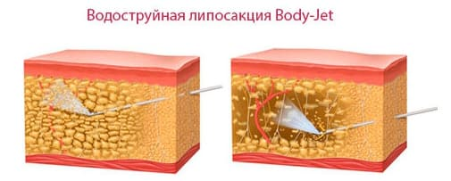 Jet Badan Liposuction Jet Air
