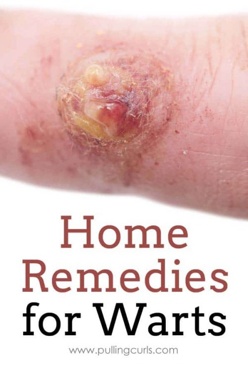 warts remedy | essential oils | oregano | doterra | natural | home