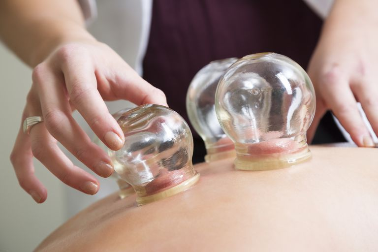 cupping therapy in forest hills queens ny