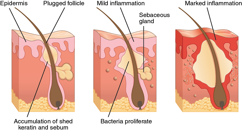 Bacterial Cell Diagram On Skin