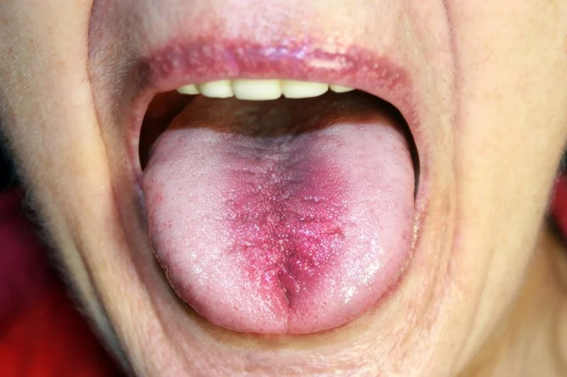 Auris Candida Tongue