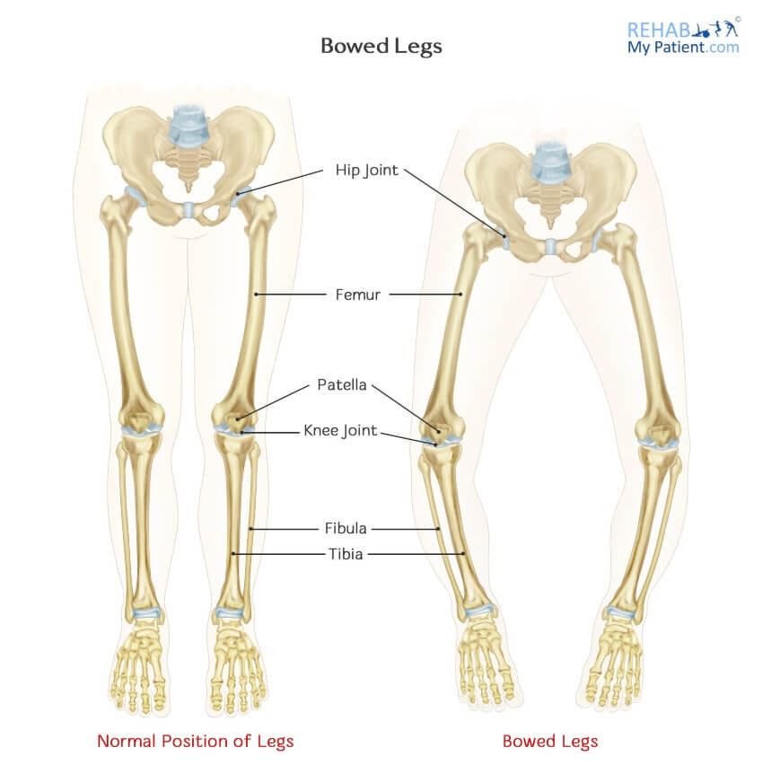 Bowed Legs | Rehab My Patient