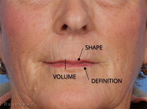 Hair Upper Laser Lip Removal