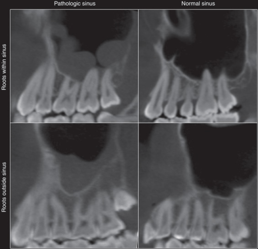 How Do Sinuses Affect Teeth