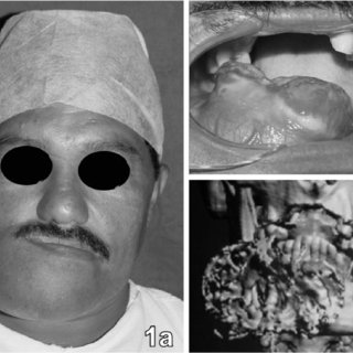 (PDF) Treatment of large ameloblastic fibroma: a case report