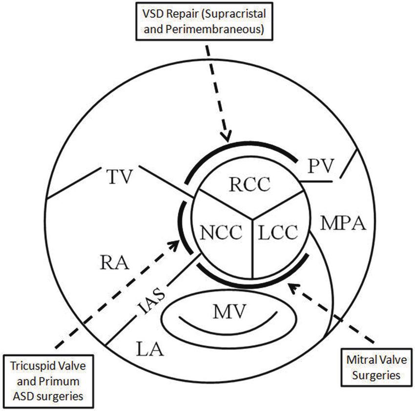 Of Arantius Aortic Valve