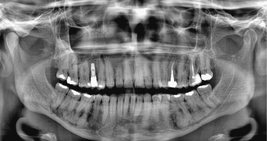 ameloblastic fibroma radiograph - 850×451