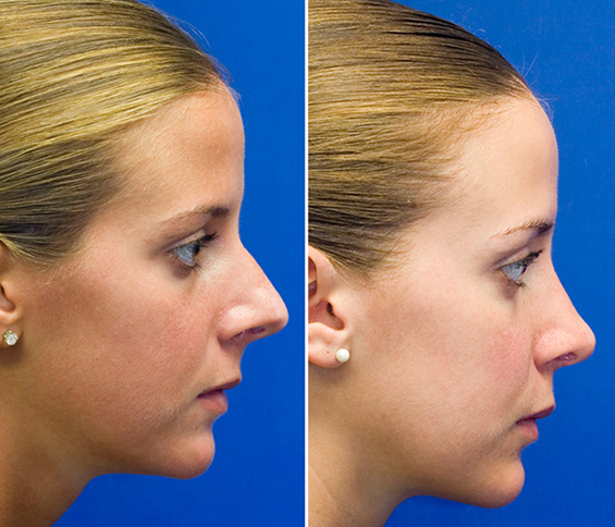 Open Rhinoplasty And After