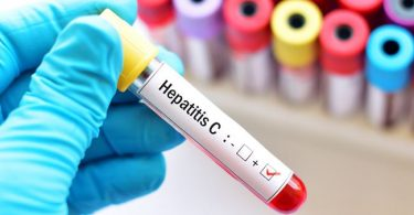 The WHO wants to rid the world of hepatitis by 2030: why it's a tough ask