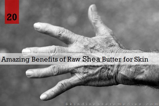 African Shea Butter Moisturizer