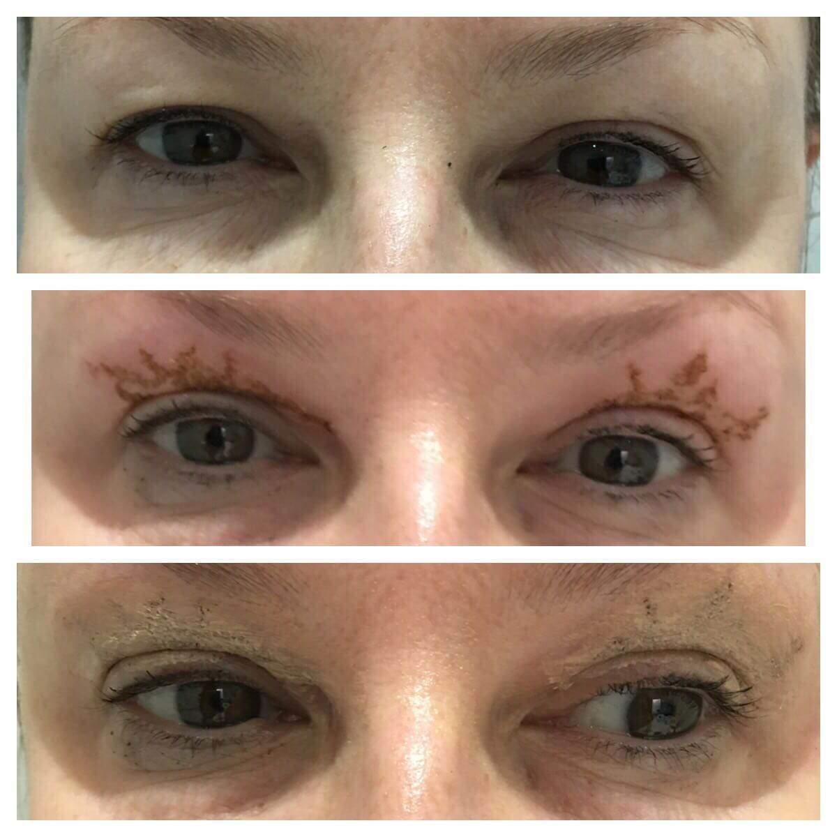 Real Life Story Meet Sally Age 47 Married And Proud Mother Of Three Who Had A Blepharoplasty Eye Bag Removal Procedure Non Surgical Treatments