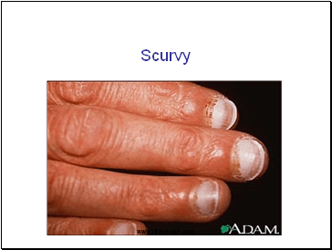 Scurvy Presentation Health And Disease