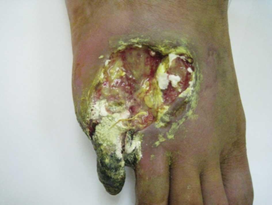 Broken Blood Vessel Toe