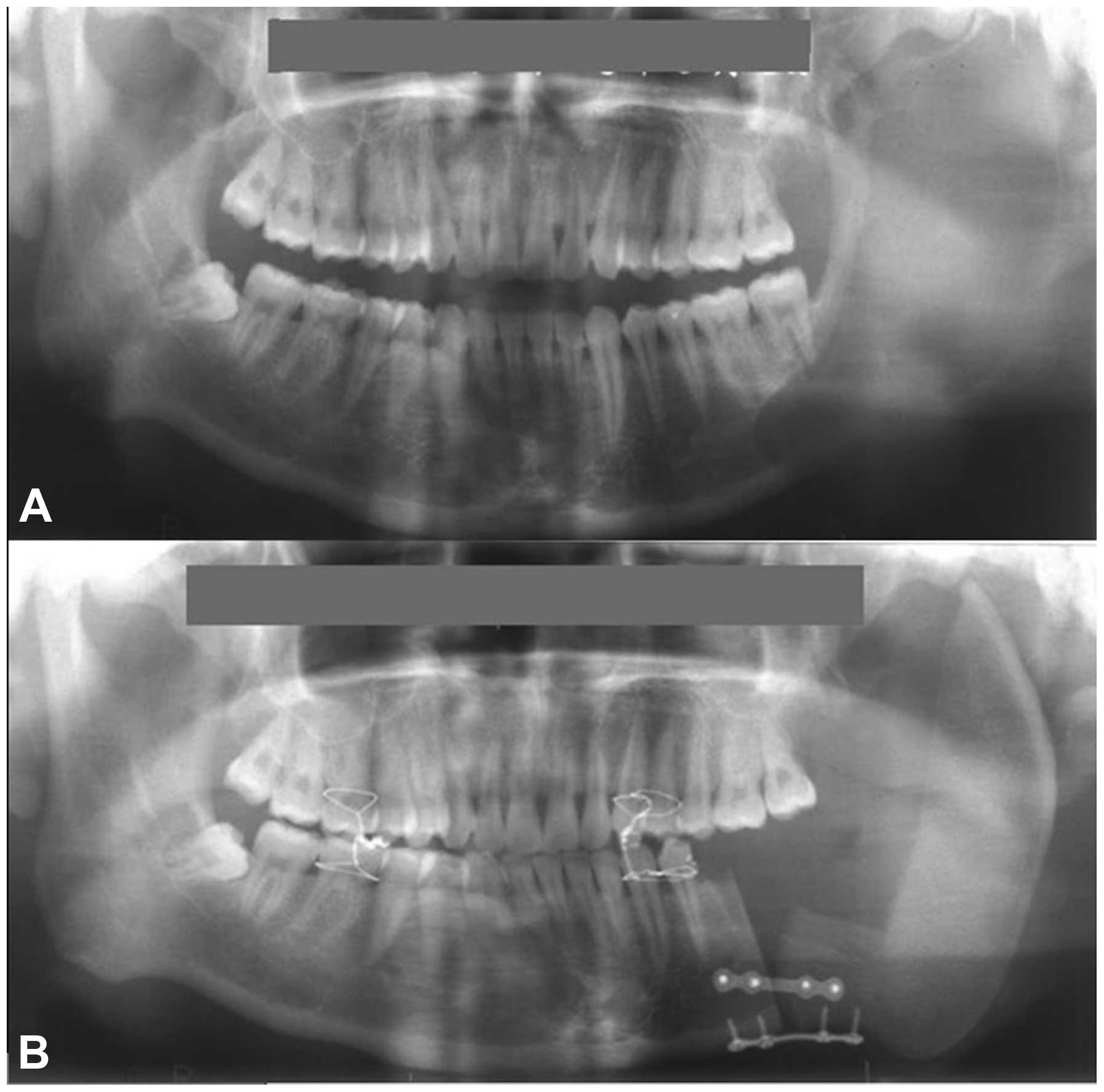 Ameloblastic fibrosarcoma of the mandible: A case report ...