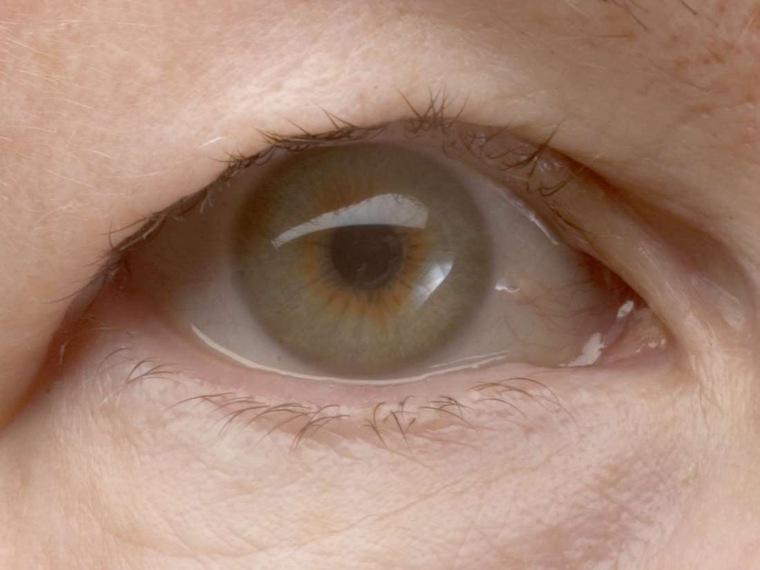 Droopy Eyelid Causes Upper