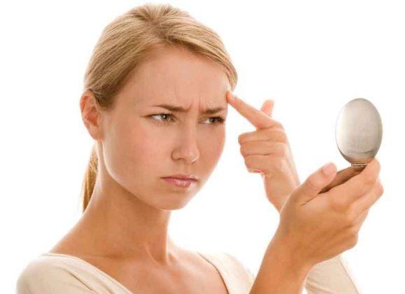 https://www.surefactory.com/top-best-acne-estivalis-treatment/