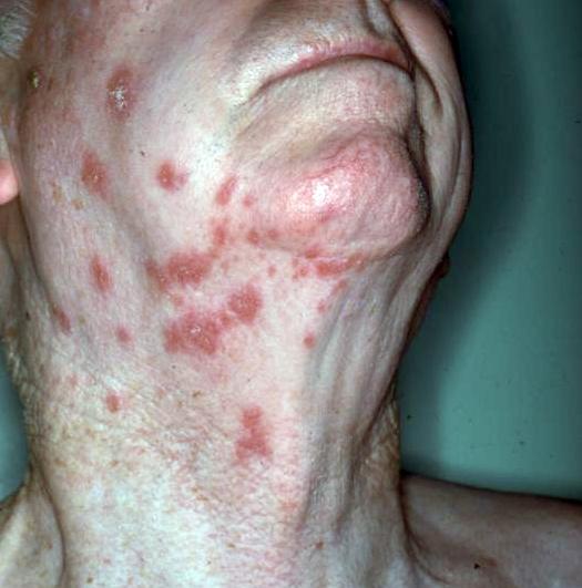 El medicina zoster para controlar natural herpes