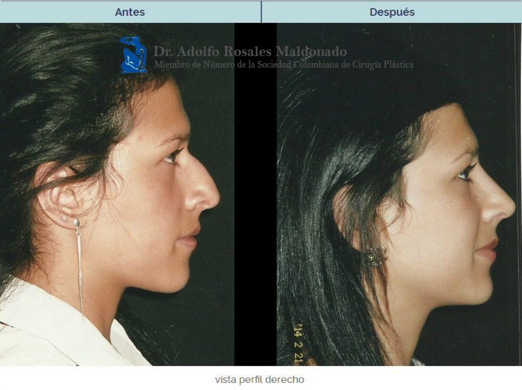 cirugia estetica de nariz costo