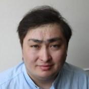 თმის ცვენა (2)