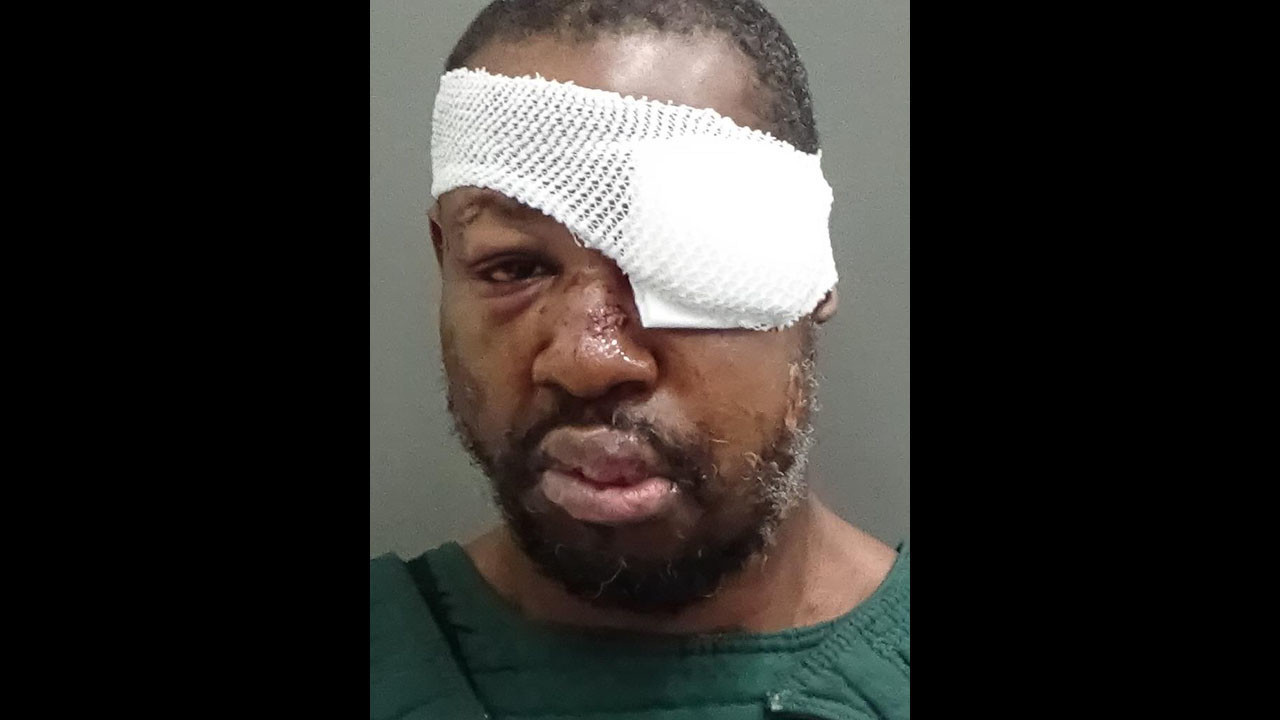 Suspect Orlando Cop S Slaying Says He Was Brutalized