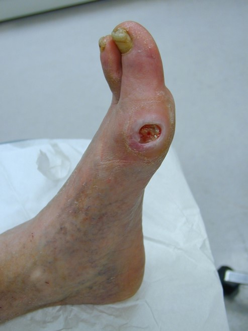 Foot Venous Stasis Ulcer Scab