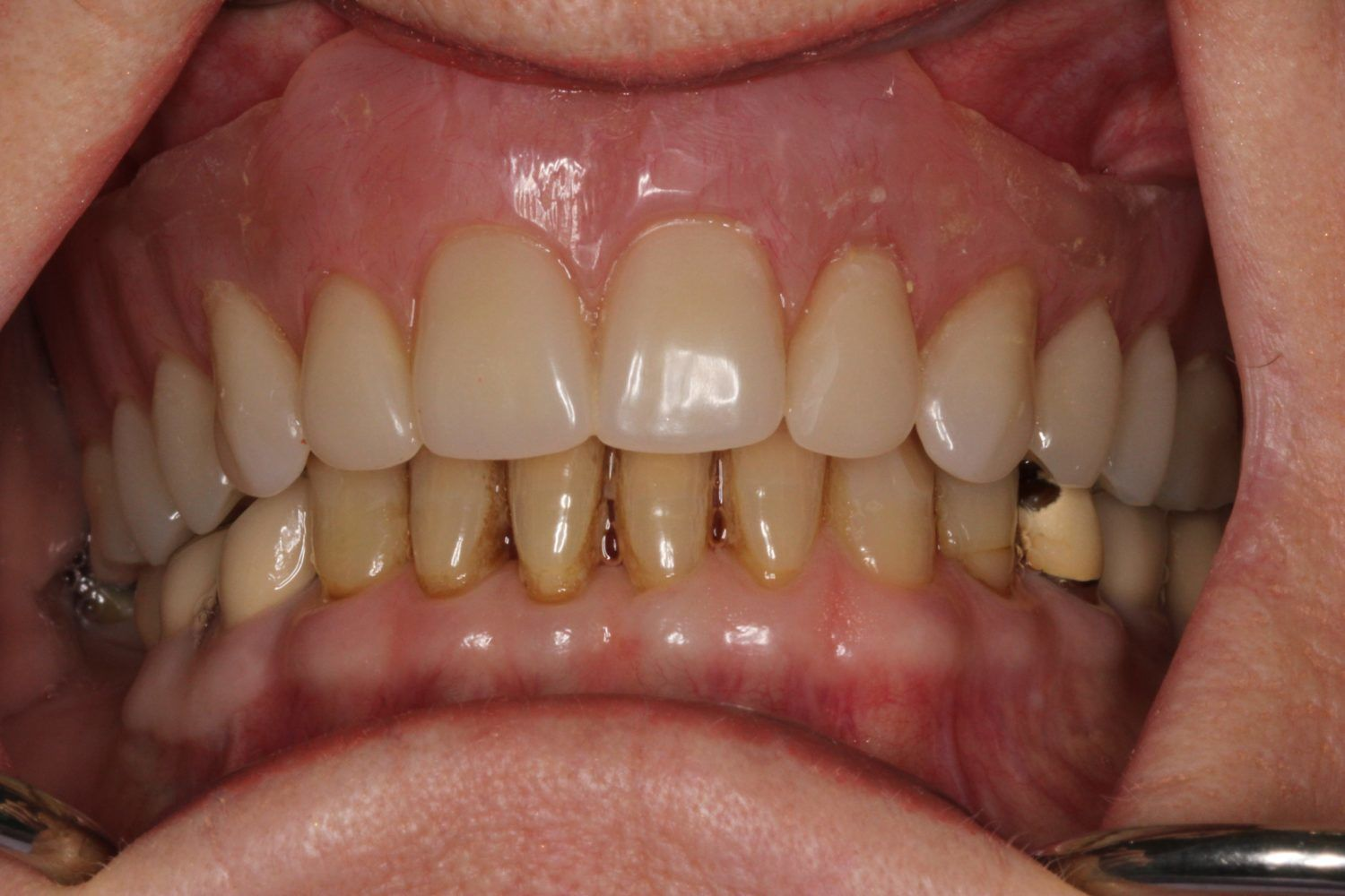 Immediate Denture After Removal Of All Upper Teeth Vdsc