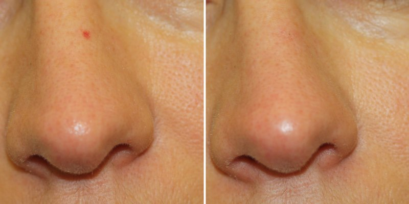 Treat Broken Capillaries Nose